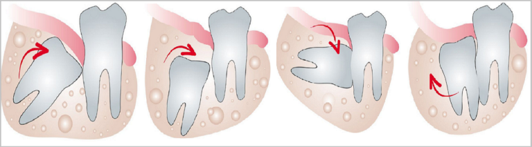 Wisdom-Tooth-extraction-Pune-768x213